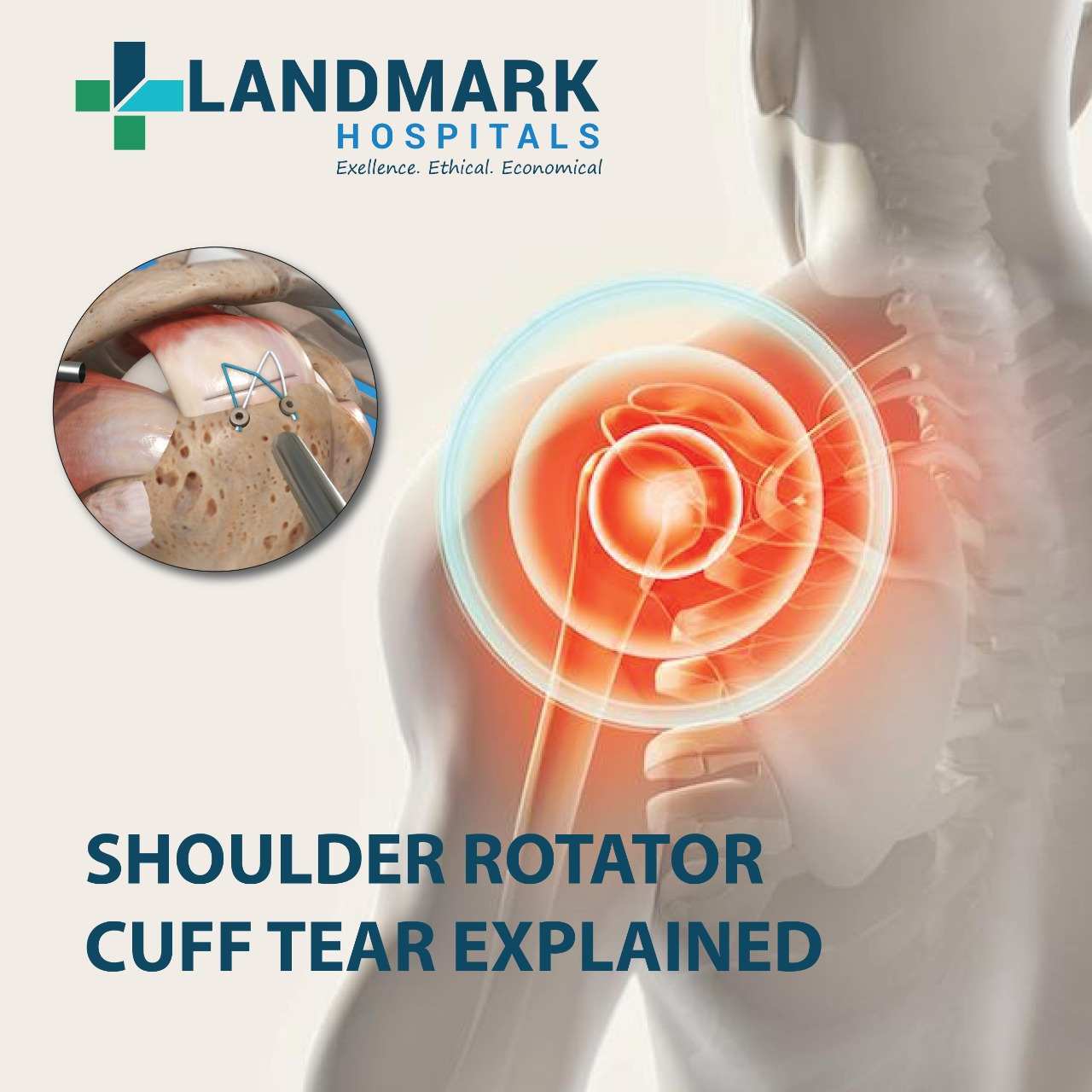 Shoulder Rotator Cuff Tear: When to get the surgery and recovery