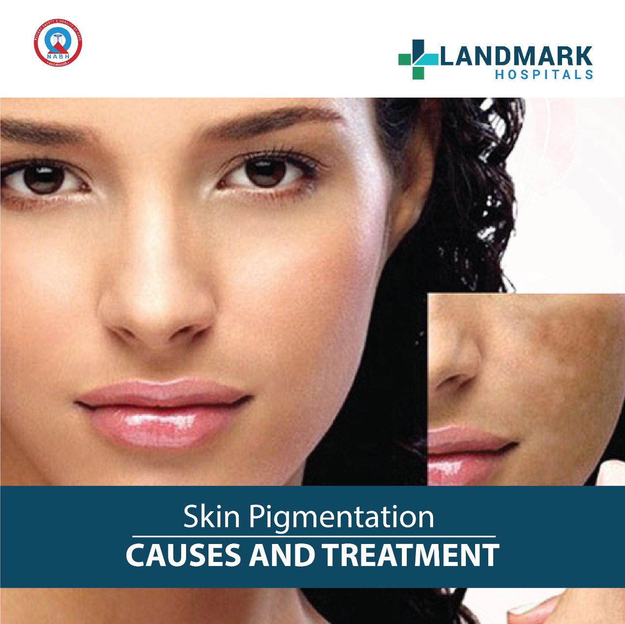 Skin Pigmentation Causes And Treatment