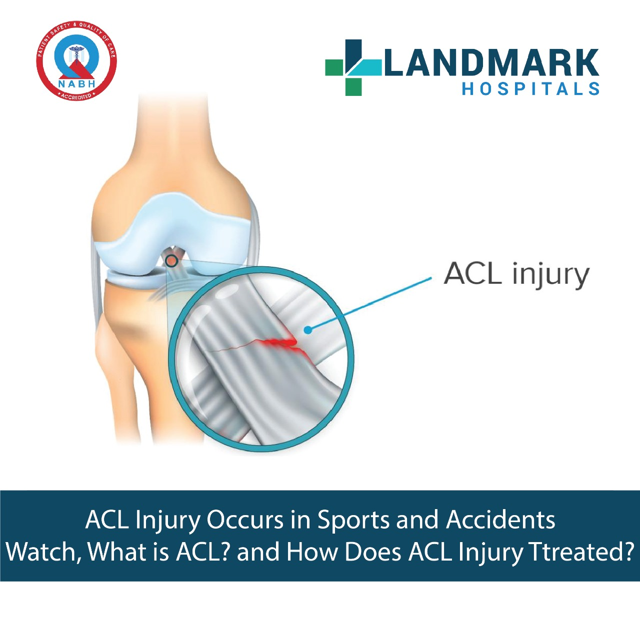 ACL Injuries and Treatment Explained